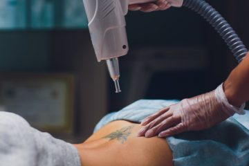 Things You Should Know About Tattoo Removal