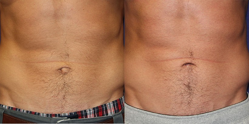 belly button correction