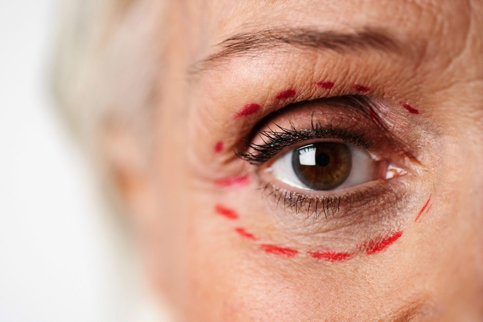 Most Common Complications of Plastic Surgery