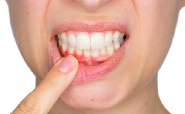 Dealing With Periodontal Disease